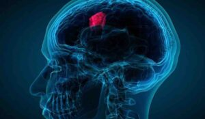 Neurosurgical Oncology