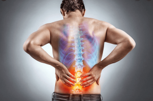 Sciatica Pain Fort Worth
